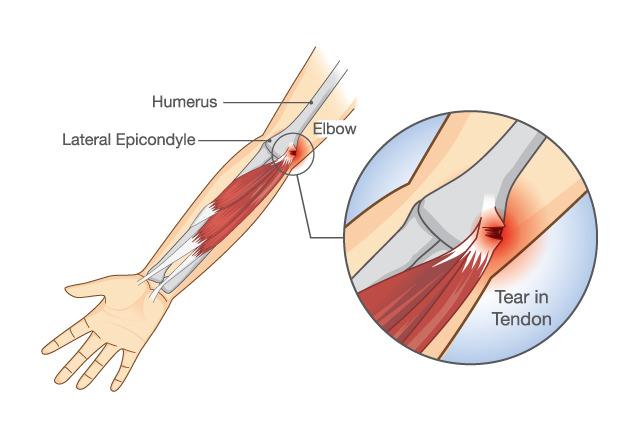 tennis-glofers-elbow.jpg